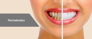 dentist in tijuana